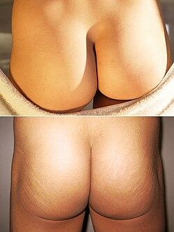 Naked Female Buttocks 103
