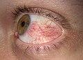 Hyperemia conjunctiva.jpg