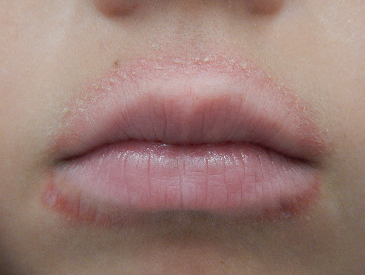 Lip licker's dermatitis - Wikipedia