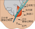 Medio-lateral-episiotomy-zh-tw.png