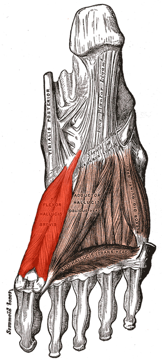 Flexor hallucis brevis muscle - Muscles of the sole of the foot. Third layer. (Flexor hallucis brevis visible at left.)