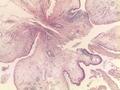Nasal polyp 25x H+E (1).tif