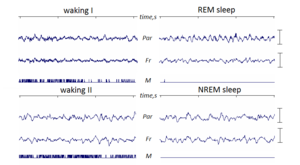 Theta wave - The sample of mouse EEG. Theta rhythm is prominent during part of awaking and REM sleep
