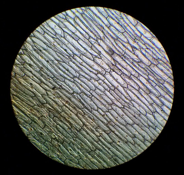 File:Onion cells under the light microscope.jpg ...