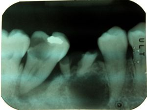 Combined periodontic-endodontic lesions - Periapical readiograph of lower right teeth, showing a large carious lesion in the distal of the lower right second molar. The same tooth also has an extensive periodontal defect. At this stage, without further information, it is difficult to tell which process has occurred first and lead to the death of the pulp.