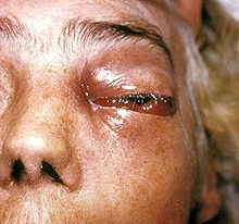 Periorbital fungal infection known as mucormycosis, or phycomycosis PHIL 2831 lores.jpg