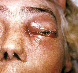 Periorbitální plísňová infekce známá jako mucormycosis nebo phycomycosis PHIL 2831 lores.jpg