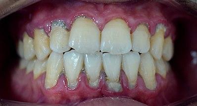 جير الأسنان ويكيبيديا