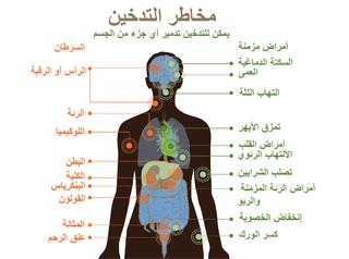 83fbfc0bc الآثار الصحية للتدخين - ويكيبيديا، الموسوعة الحرة