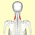 Scalenus medius muscle05.png