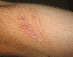 Scars present on the skin, evidence of fibrosi...