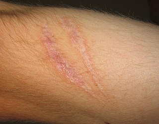 Scar area of fibrous tissue that replaces normal skin after an injury
