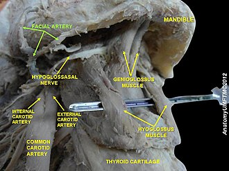 Facial artery - Image: Slide 6ww
