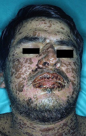 Sulfonamide (medicine) - Patient suffering from Stevens–Johnson syndrome