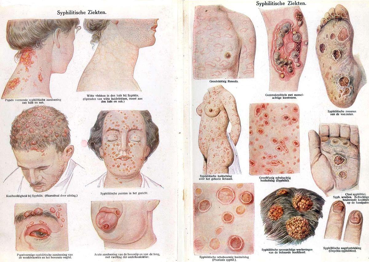 Afbeelding van Syfilis. Vaak verkeerd gespeld als: sifilis, siefielis, syfieles, sifiles, sifilus, syfilus.