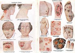 sexually transmitted infection - wikipedia, Skeleton