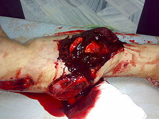 Tibia shaft fracture