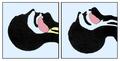 Tongue-blocking-airways.png