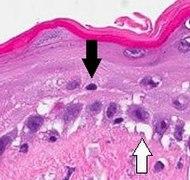 Vacuolar interface dermatitis, annotated.jpg