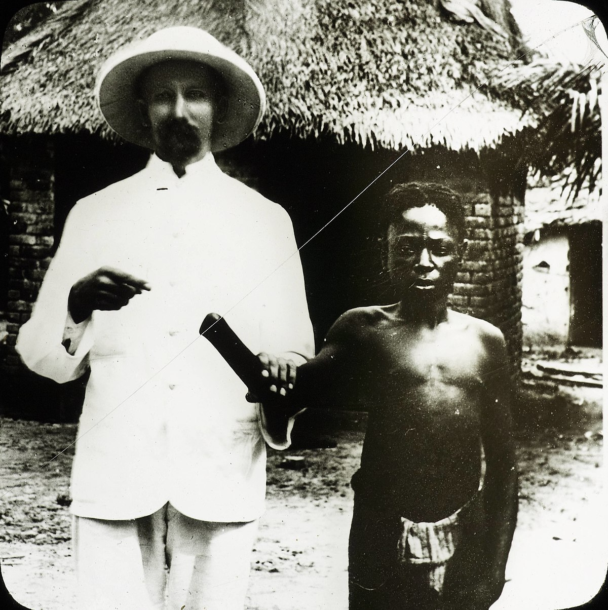 Victim of Congo atrocities, Congo, ca. 1890-1910 (IMP-CSCNWW33-OS10-19).jpg