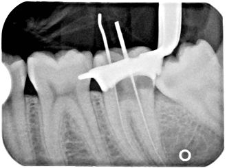 Endodontic therapy - x-ray of a root canal operation