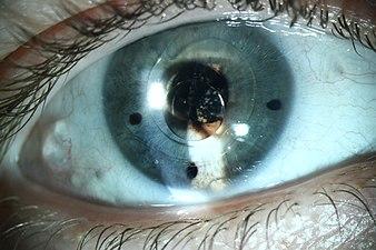 Шарик силиконового масла перед переднекамерным искусственным хрусталиком(ИОЛ) глаза.jpg