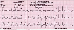 An ECG showing pardee waves indicating acute m...