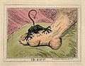 A swollen and inflamed foot; gout is represented as an attac Wellcome V0010853.jpg