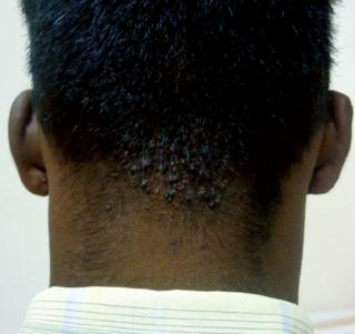 Acne keloidalis nuchae Medical condition