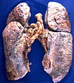 Amyloidosis (4867136708).jpg