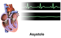 Asystole.png