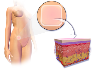Contraceptive patch - Illustration depicting transdermal contraceptive patch.