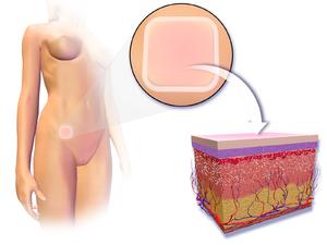 Contraceptive patch - Illustration depicting transdermal contraceptive patch.