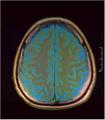 Brain MRI 293 04.png