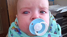 Buftalmus u dětského pacienta s kongenitálním glaukomem.