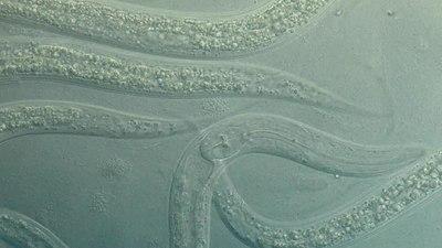 File:Caenorhabditis elegans 02.webm