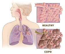 Copd versus healthy lung.jpg
