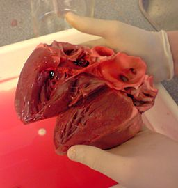Dissected pig heart