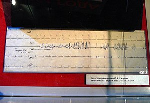 Vostok 1 - Electrocardiogram of Gagarin recorded April 11, 1961, at 19 hours and 35 minutes. Exhibited at the Memorial Museum of Cosmonautics in Moscow.
