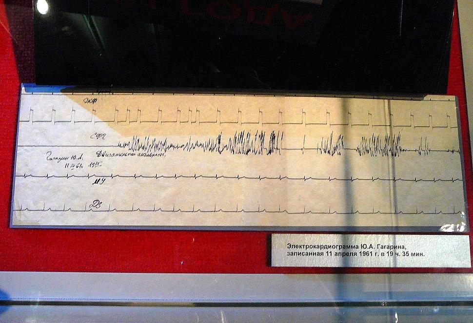 Electrocardiogram of Gagarin