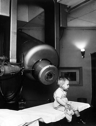 External beam radiotherapy - Historical image showing Gordon Isaacs, the first patient treated with linear accelerator radiation therapy (in this case an electron beam) for retinoblastoma in 1957. Gordon's right eye was removed January 11, 1957, because the cancer had spread. His left eye, however, had only a localized tumor that prompted Henry Kaplan to try to treat it with the electron beam.