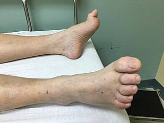 deformity of the proximal joint of the second, third or fourth toe