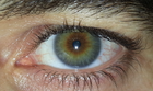 "Eye color is an inherited trait influenced by more than one gene, including OCA2 and HERC2. The interaction of multiple genes—and the variation in these genes (""alleles"") between individuals—help to determine a person's eye color phenotype. Eye color is influenced by pigmentation of the iris and the frequency-dependence of the light scattering by the turbid medium within the stroma of the iris."
