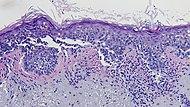 Histopathology of lentigo maligna melanoma.jpg
