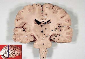 Lateral sulcus - Image: Human brain frontal (coronal) section description 2