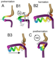Intestinal rotation and herniation.png