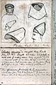 John Temperley Gray, Notebook, 1862-88 Wellcome L0027887.jpg