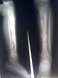 التهاب العظم والنقي في عظمة الظنبوب لطفل. والعديد من الخراجات بواسطة الكثافة الشعاعية.