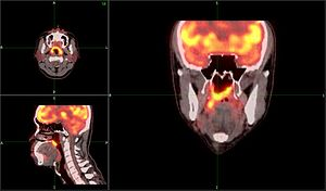 English: PET Scan head and neck for nasopharyn...