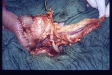 pankreastransplantation � wikipedia